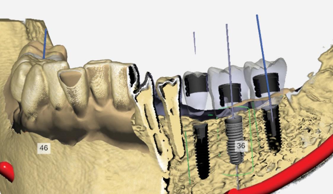 2-implantologie